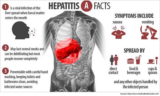 Hepatit A dünyada en sık görülen hepatit sebebidir.